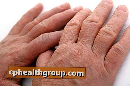 vörös foltok jelennek meg a kezek bőrén)