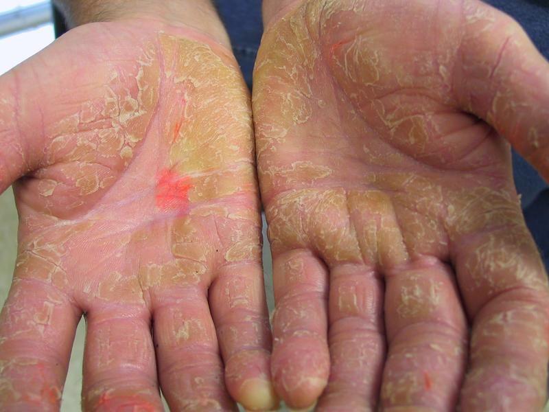 palmoplantar pikkelysömör kezelése