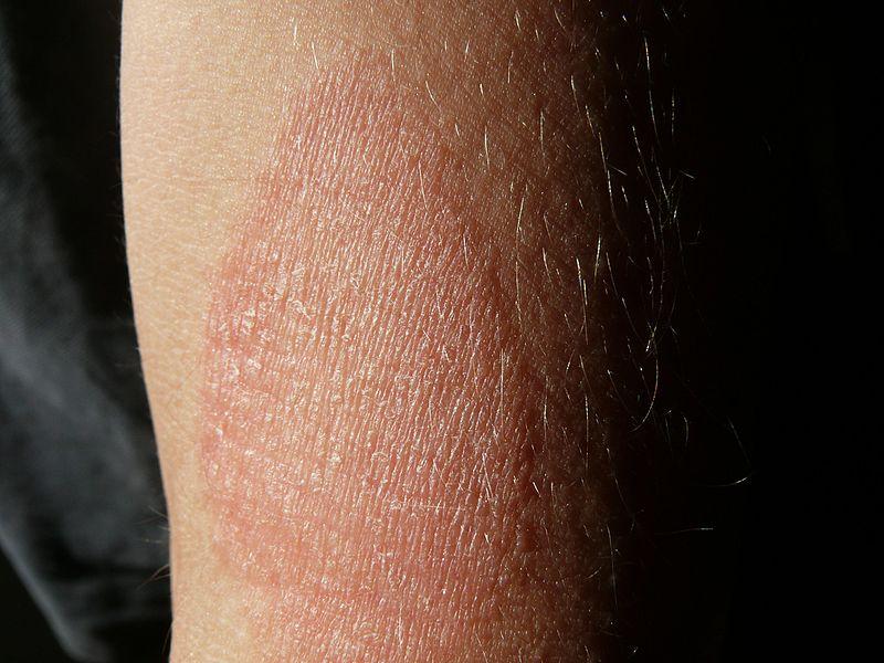 vörös foltok a karokon a könyöktől a csuklóig)