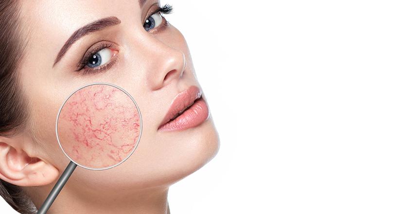 hogyan lehet eltávolítani a vörös foltokat a kozmetikus után