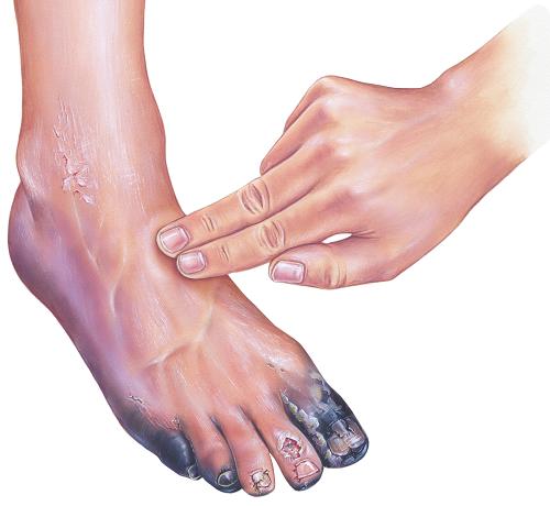 vörös lábfoltok kezelése cukorbetegségben)