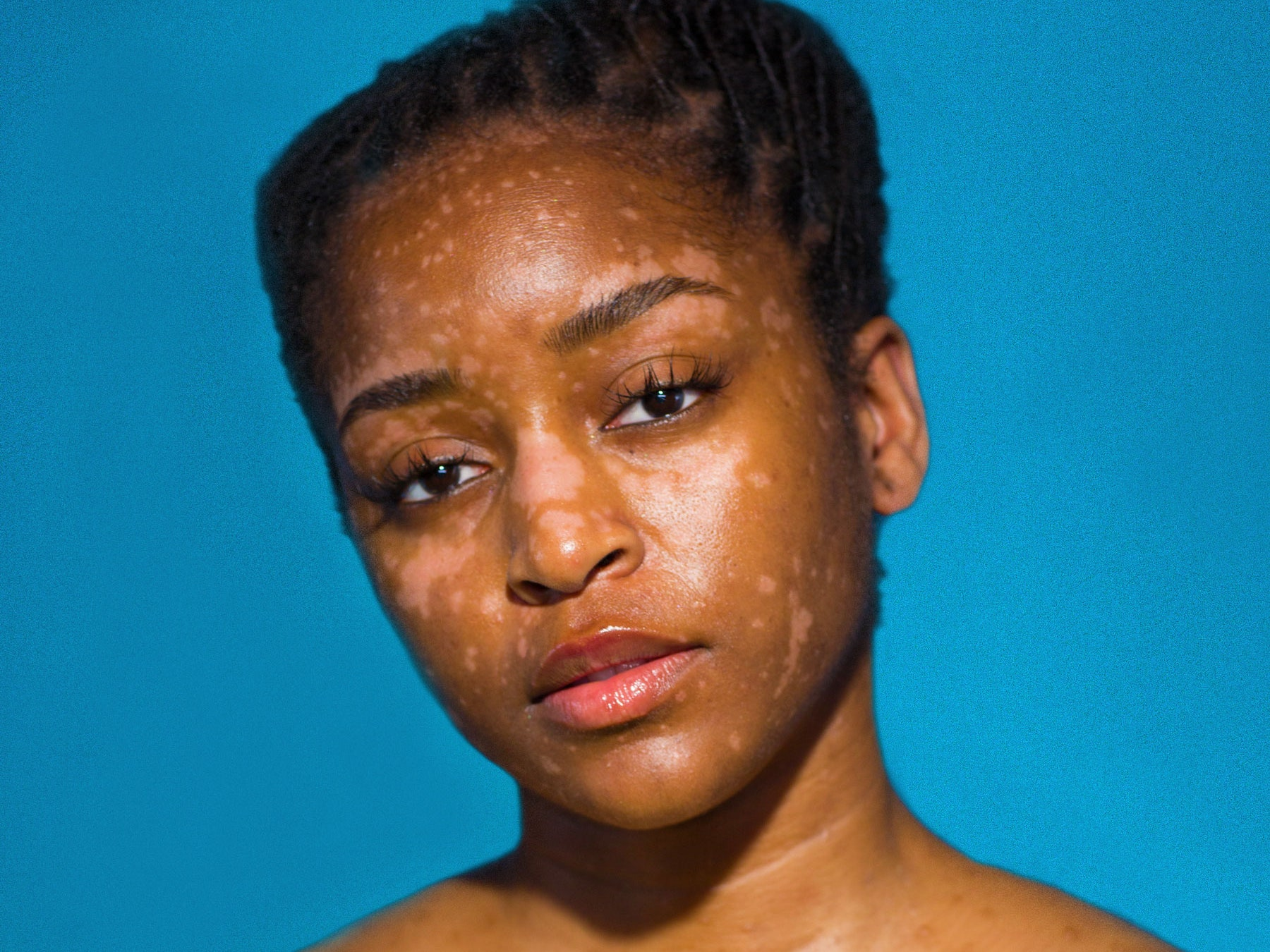 Mint fürdés a psoriasis