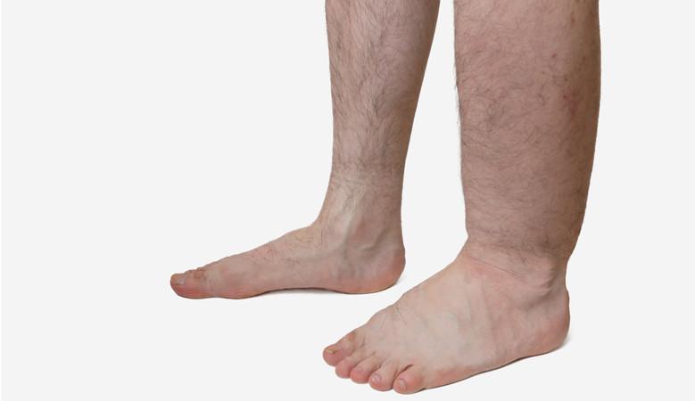 a lábán piros folt van, a láb megduzzadt)