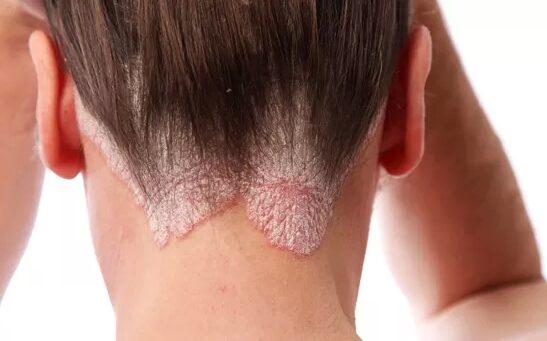 Hatékony kenőcs a psoriasisra a fejen - Tünetek