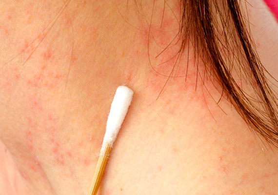 piros folt a nyakon viszket fénykép)