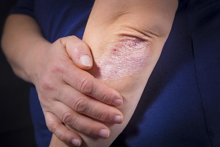 piros foltok jelentek meg a tenyerén fotó hogyan kell kezelni pikkelysömör kezelése népi gyógymódokkal a könyökön