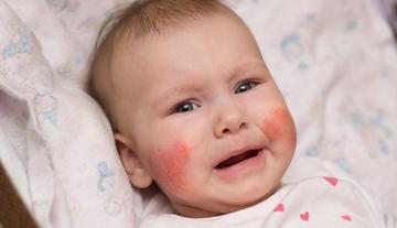 viszkető vörös foltok az arcon és a nyakon pikkelysömör kezelése a legjobb, ha alkalmazzuk
