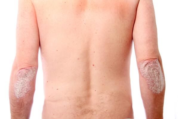 pikkelysömör kezelése zavyalovo-ban libadombok és vörös foltok jelentek meg a lábakon