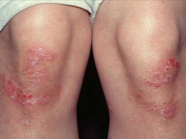 viszkető vörös foltok a lábán