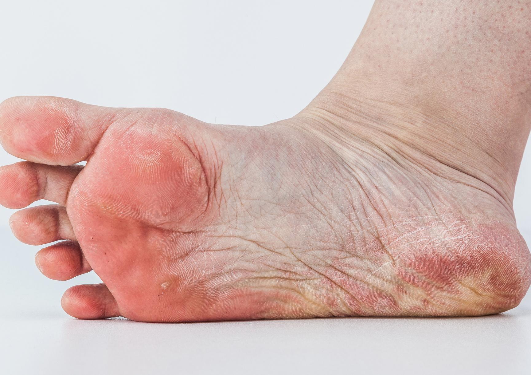 vizes vörös folt a lábán)
