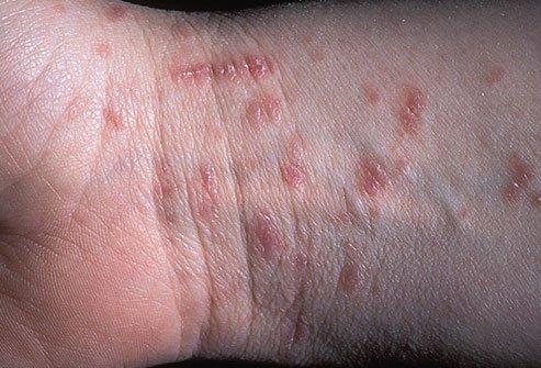 vörös foltok a testen és viszkető kezek)