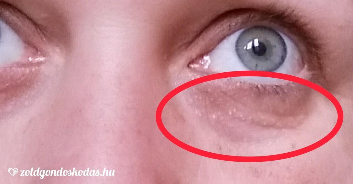 vörös szem a bőrön a szemöldök között