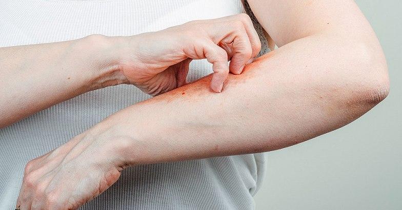 ujj pikkelysömör kezelése tenyér viszket és vörös foltokkal borítja mi ez