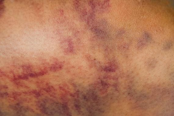 a bőrön egy vörös folt zúzódásként fáj)