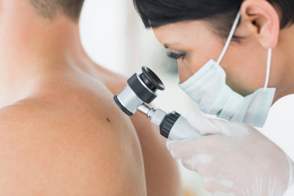Vörös, pikkelyes foltok a testen: okok és kezelés - Moles November