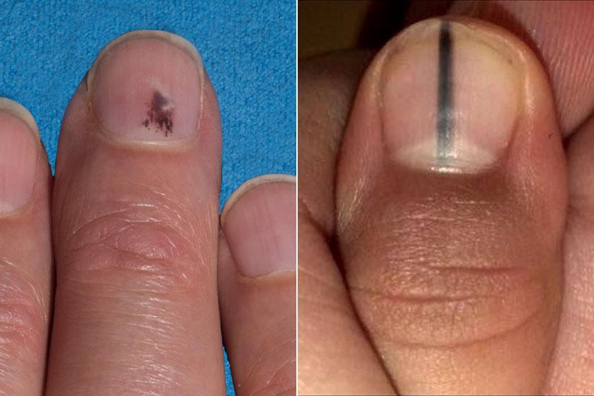 vörös folt a bőr alatt az ujján kontakt pikkelysömör kezelése