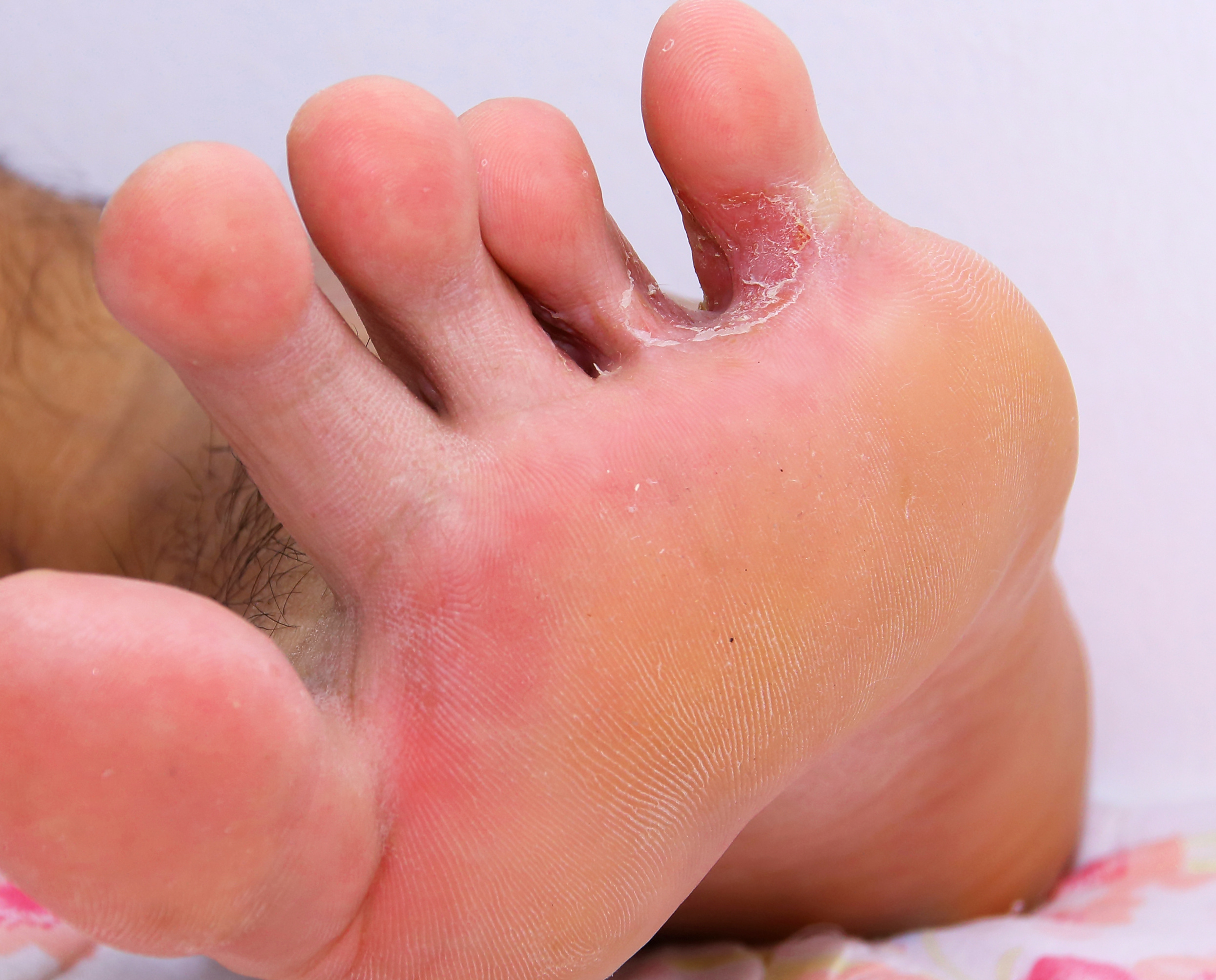 vörös foltok a lábak között hámlással