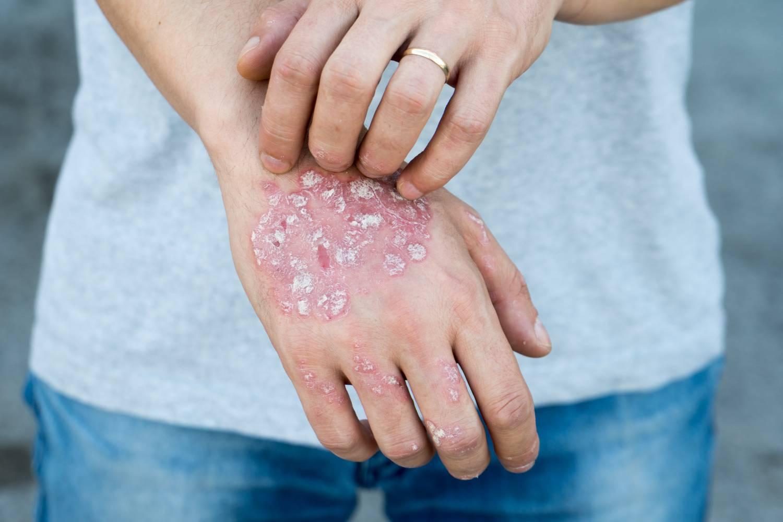 D-vitamin és pikkelysömör, bőrtünetek