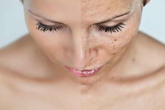 fehérítő vörös foltok az arcon)