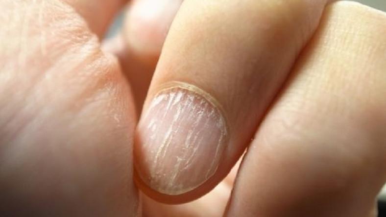domború vörös folt jelent meg a kézen piros vizes foltok a láb belső részén mi ez