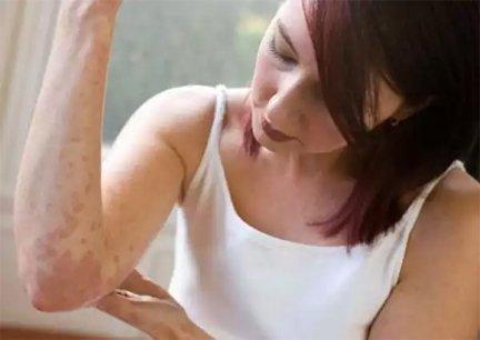 hogyan lehet gyógyítani a pikkelysömör népi gyógymódokat kerek piros foltok a lábakon mi ez