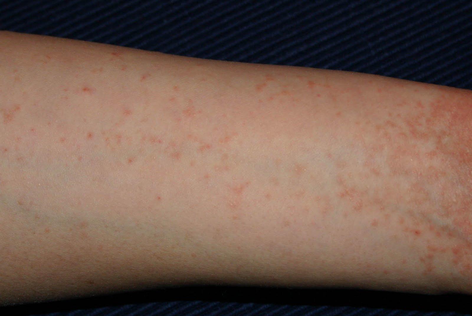 apró vörös foltok jelentek meg a bőr alatt