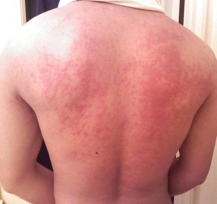 a test bőrét vörös foltok borítják