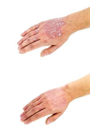 kenőcsök dermatitis és pikkelysömör ellen)