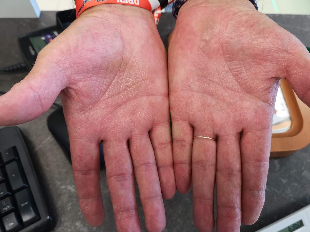 vörös folt és száraz a kezén)