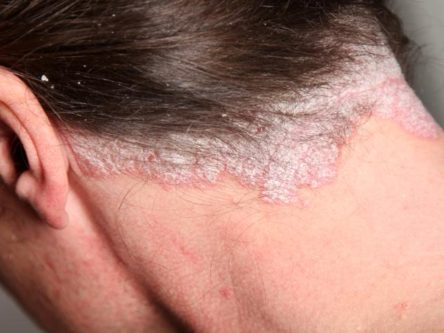 hogyan lehet eltávolítani a pikkelysömör a homlokon vörös foltok és hámlás a szemöldökben