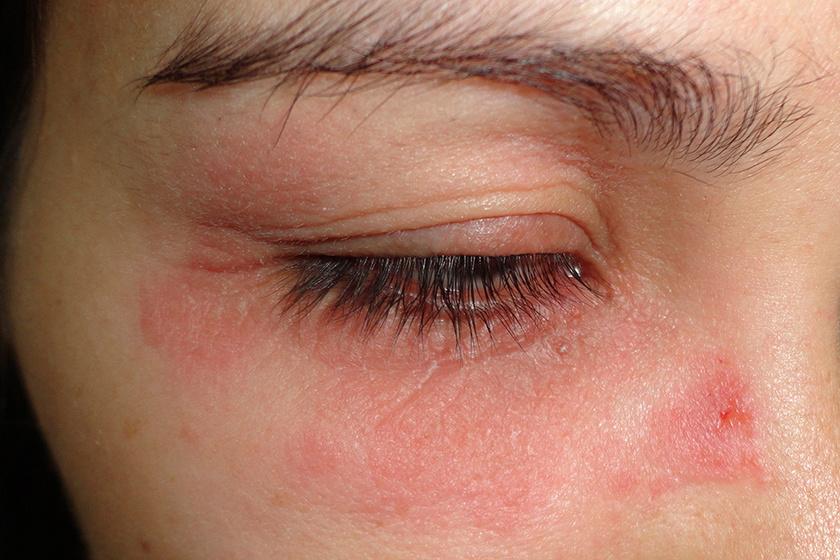 vörös foltok pikkelyesek a szem alatt)