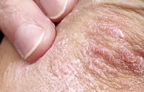 pikkelysömör vulgaris kenőcs kezelés