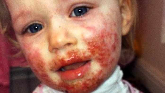 miért álmodik a vörös foltokban lévő arc)
