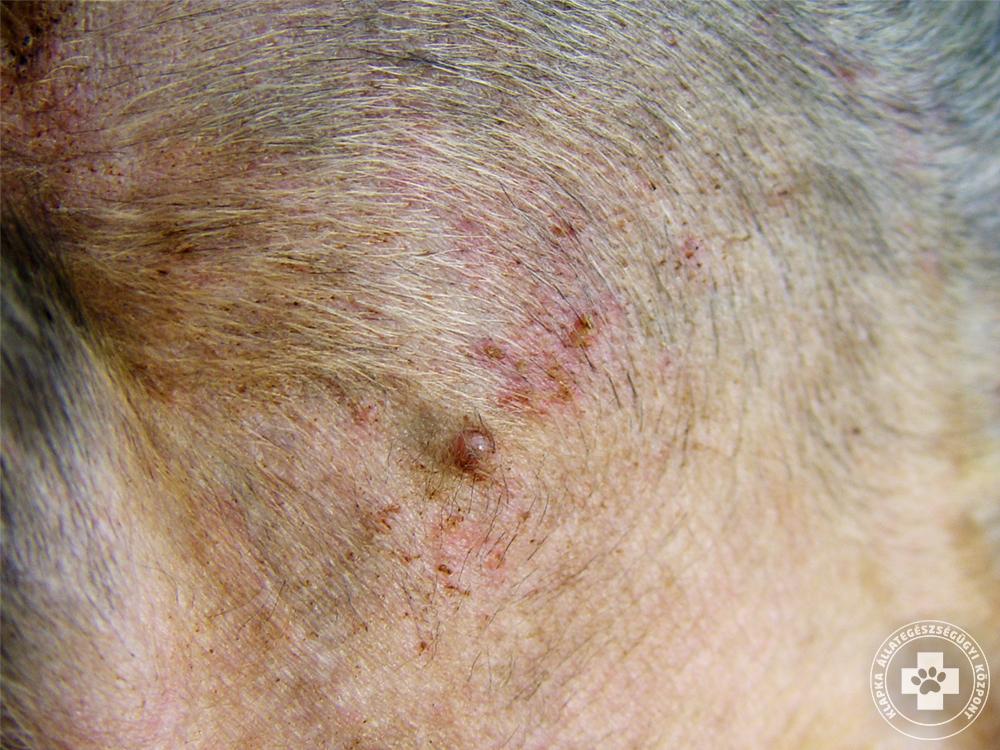 bőrgyógyászat vörös folt a lábán)