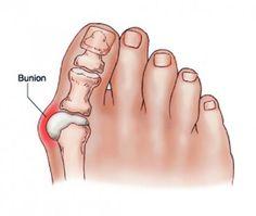 Folliculitis - Giardia skin problems