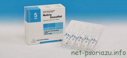 nátrium-tioszulfát pikkelysömör kezelése