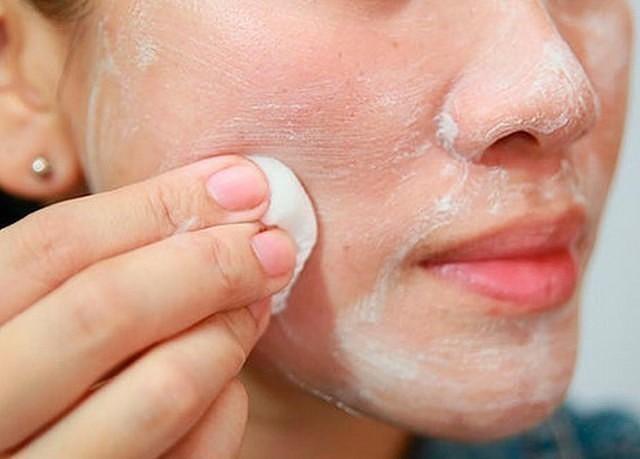 Hogyan és mire kell mosni az arcot demodikózissal - Allergia November
