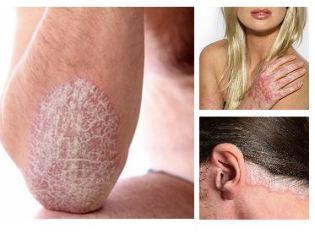 népi gyógymódok pikkelysömör kezelésére vörös száraz foltok a bőrön egy felnőttnél