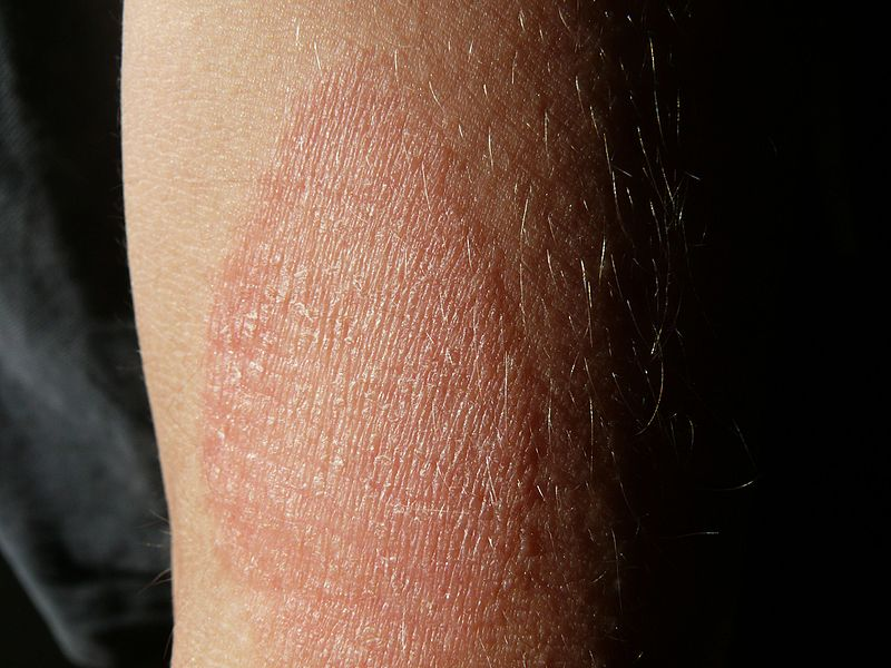 Tünet: barna foltok
