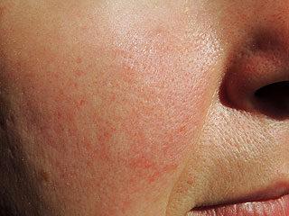 Az arc bőrén piros, száraz és pelyhes.