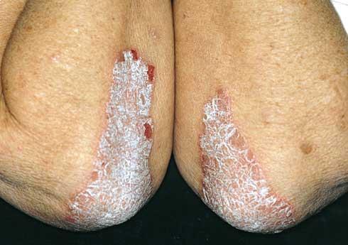 a pikkelysömör kezelése tyanshival