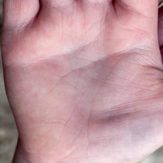 a kéz foltja piros