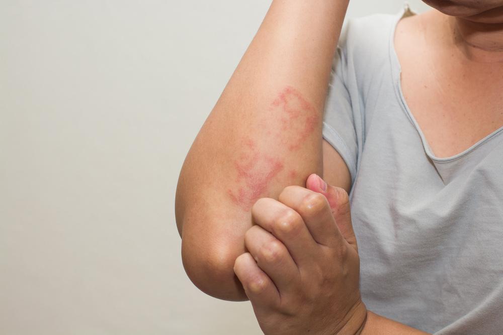 ichthyol pikkelysömör kezelésére kenőcsök a psoriasis krémek áttekintése