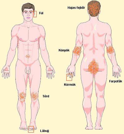 a lábán periodikusan piros folt jelenik meg