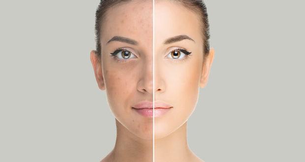 hogyan lehet eltávolítani a vörös foltokat a kozmetikus után)