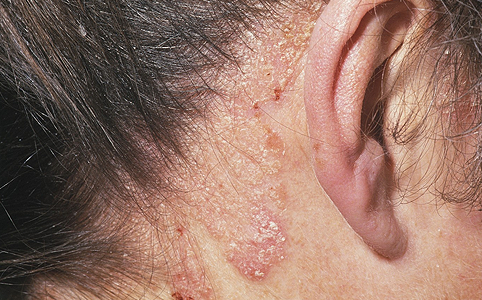 Hogyan lehet megkülönböztetni a psoriasis másodlagos szifilisz