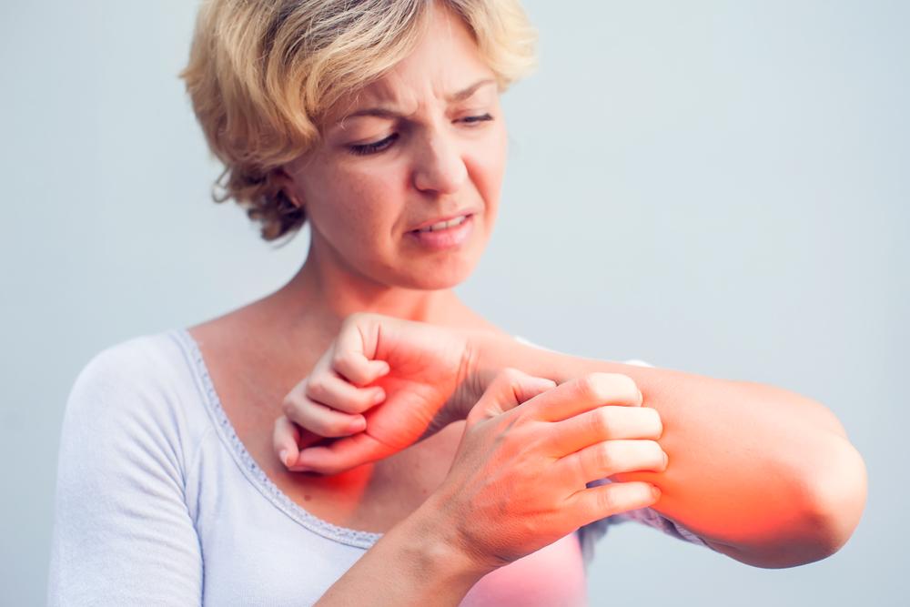vörös foltok jelentek meg az egész testben viszketés kezelés bischofite gél pikkelysömörhöz