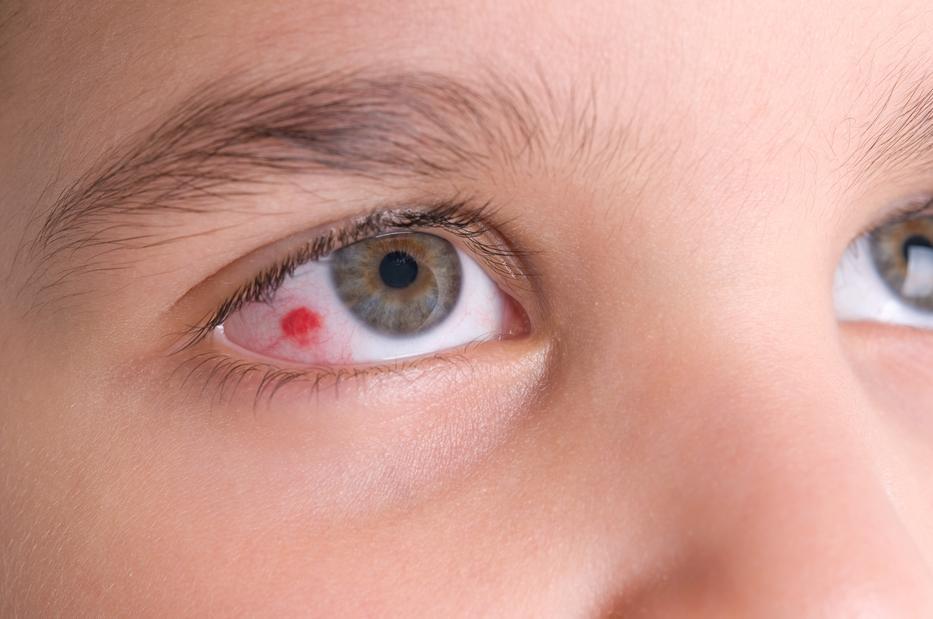 a szem alatt vörös foltok és pelyhek vannak)