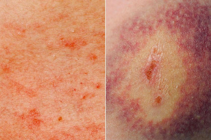 bőrkiütés vörös foltok formájában a lábakon fotó