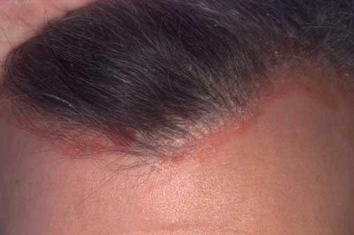 a fejbőr pikkelysömörének hatékony kezelése
